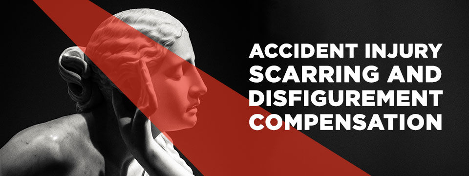 accident injury scarring and disfigurement compensation